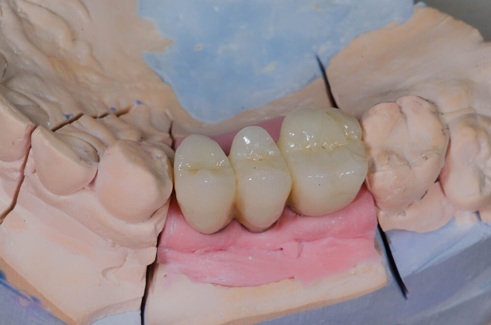Crowns on implants, fixed by cementation