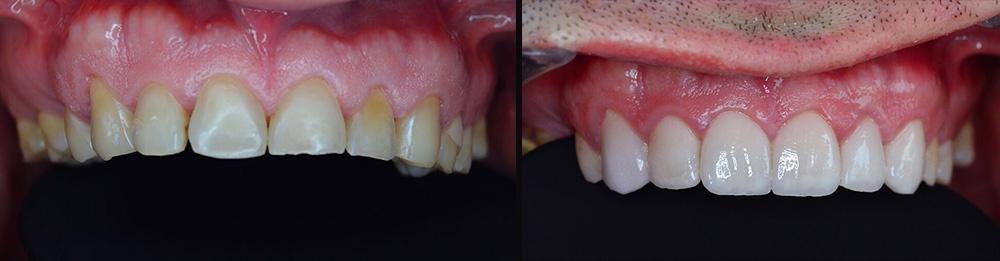 Fatete-dentare2