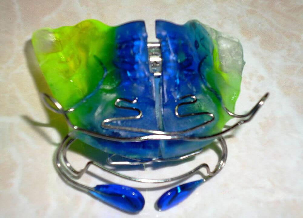 Ortodontie-poza-1