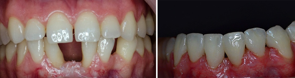 ortodontie2-
