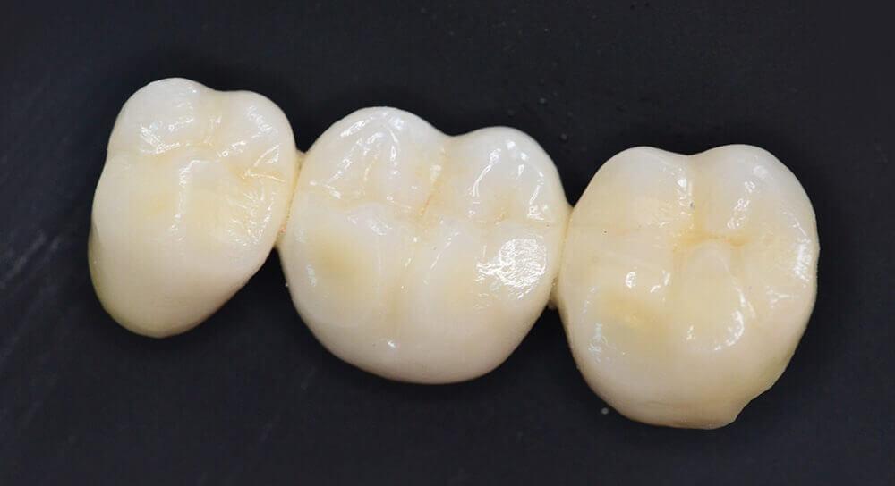 punte-dentara