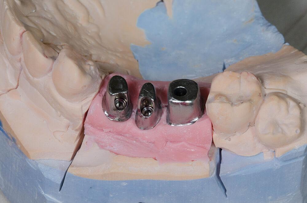 Individual implants made of titanium