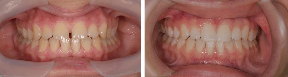 ortodontie-alignere2